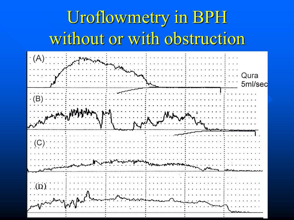 uroflowmetry