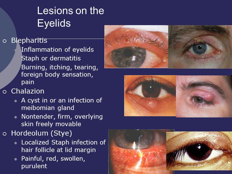 Sore Eyelids - Sore Eyelids