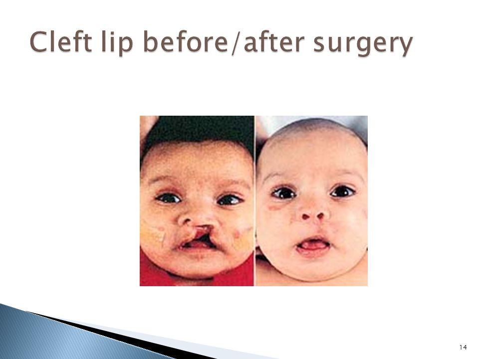 cleft palate elicit suck post surgery jpg 1200x900