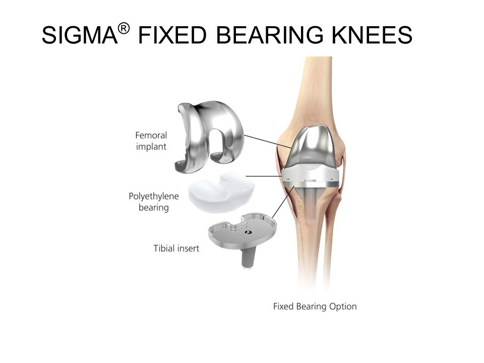 Treatment Options For Your Knee Pain Ppt Video Online