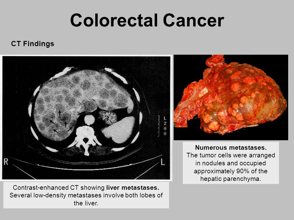 Chicago Illinois Colon Liver Cancer Specialist