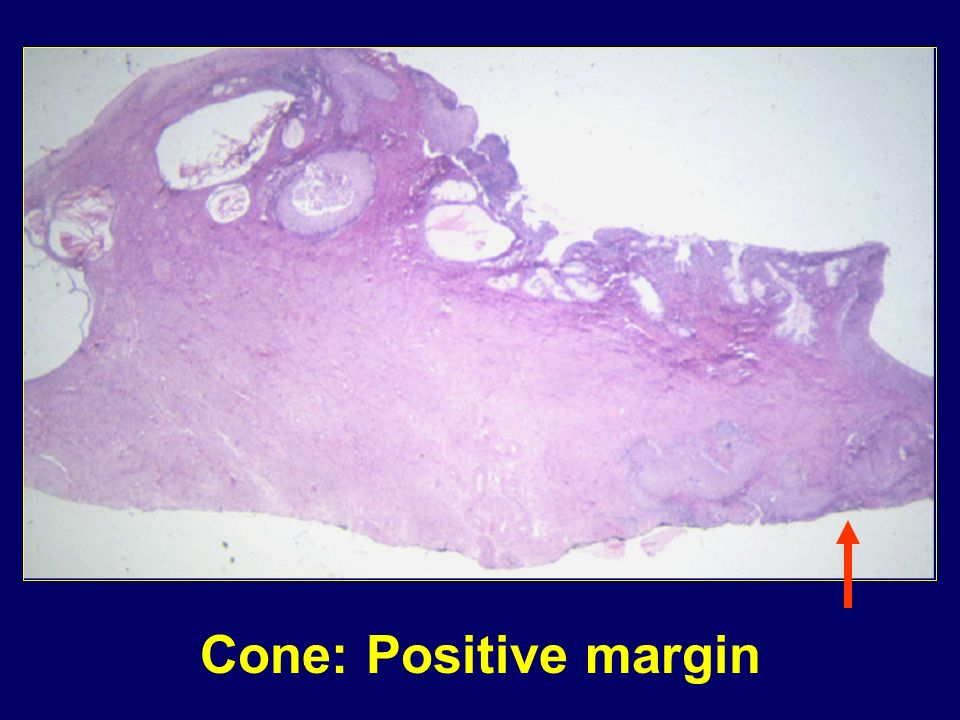 Cone: Positive margin