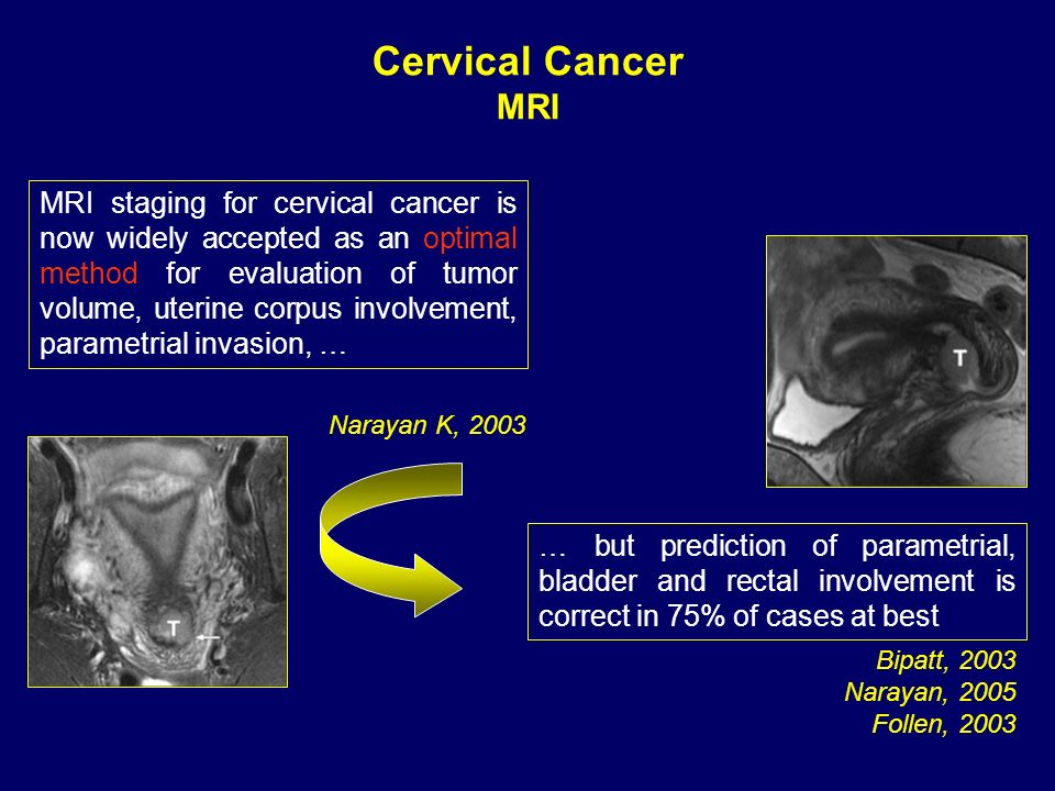 Cervical Cancer MRI.