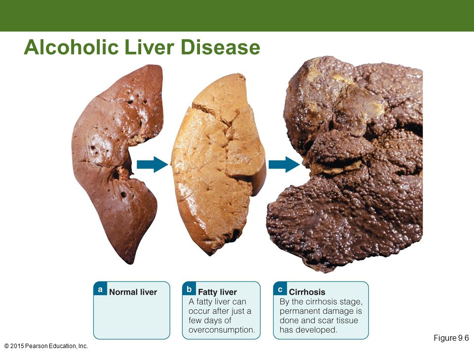Can Drinking Alcohol Cause Fatty Liver