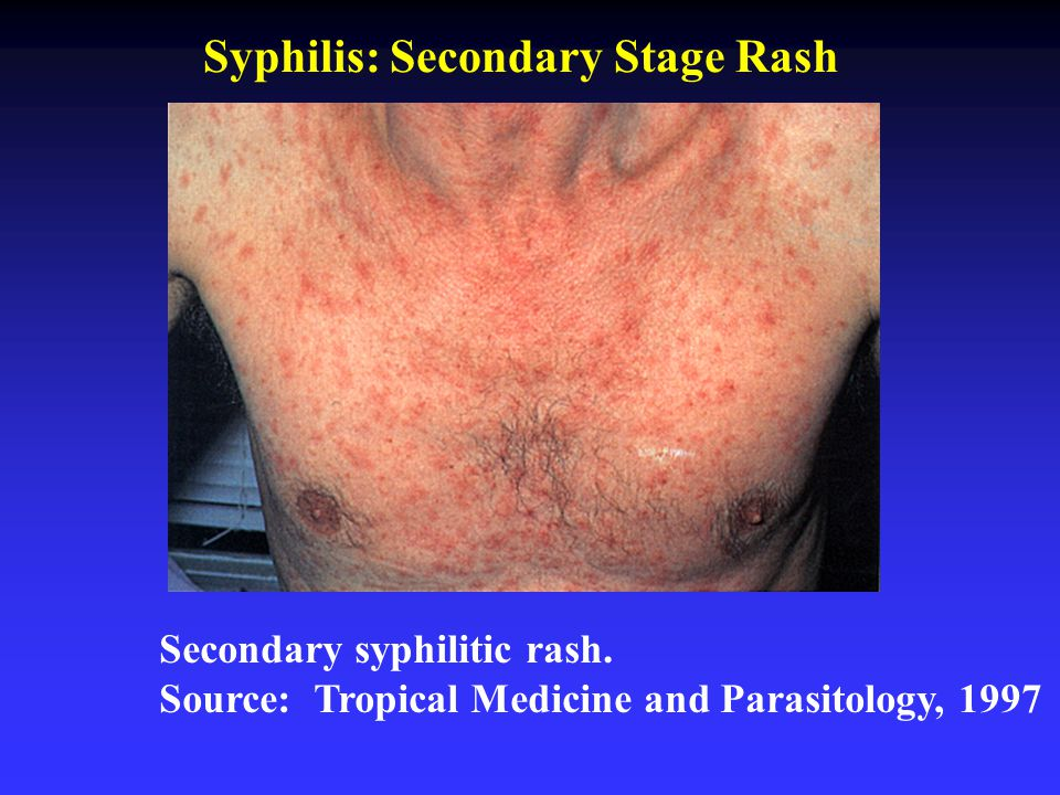Primary Syphilis Rash Chapter 27 REPR...