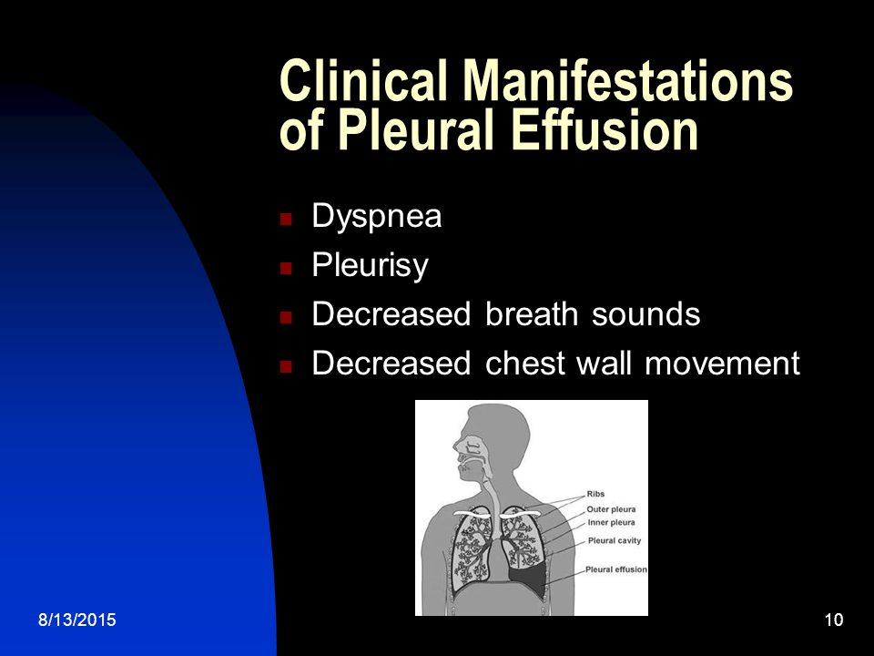 Clinical Manifestations of Pleural Effusion