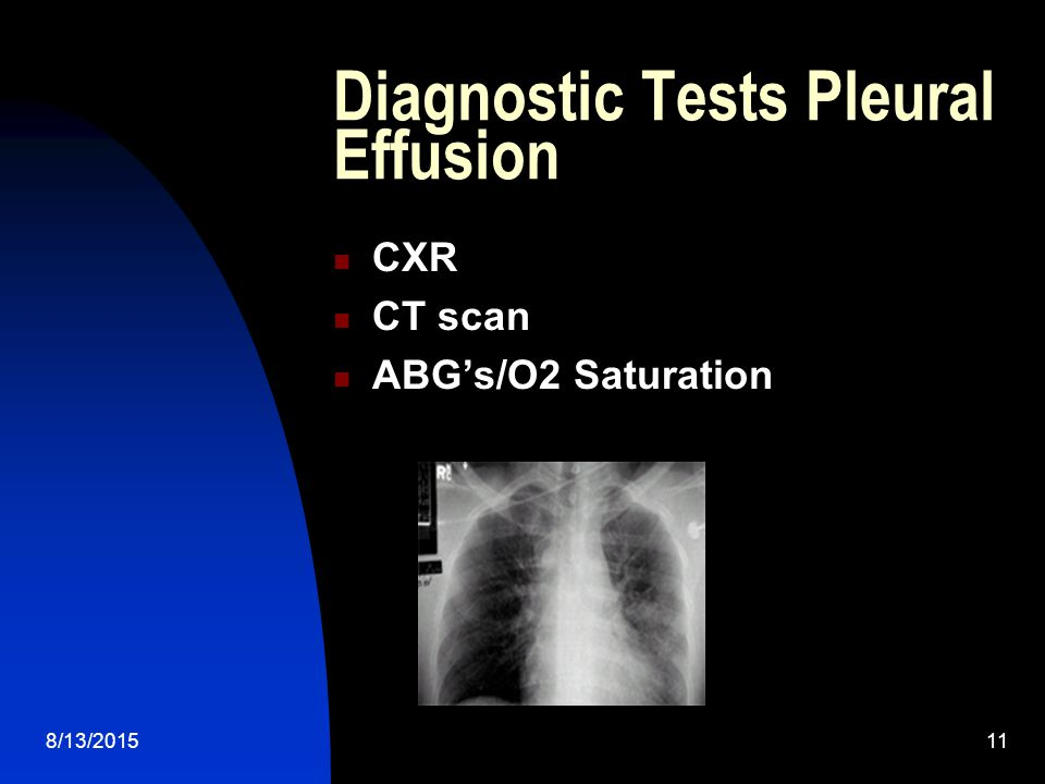 Diagnostic Tests Pleural Effusion