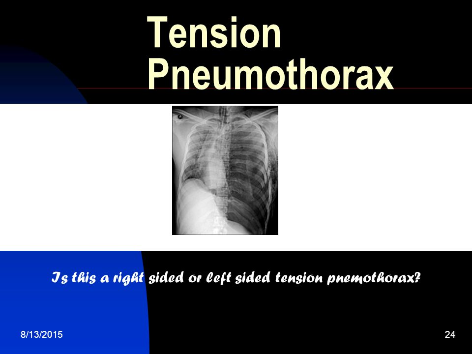 Is this a right sided or left sided tension pnemothorax