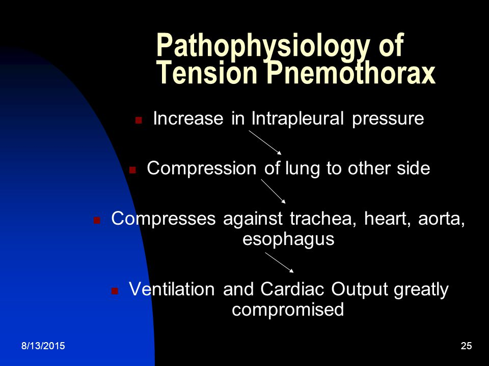 Pathophysiology of Tension Pnemothorax