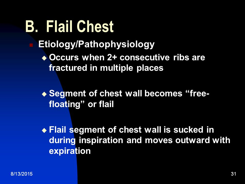 B. Flail Chest Etiology/Pathophysiology