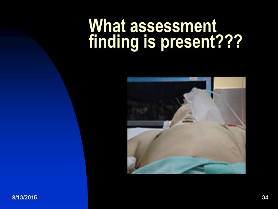 What assessment finding is present