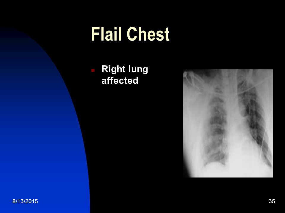 Flail Chest Right lung affected 4/19/2017