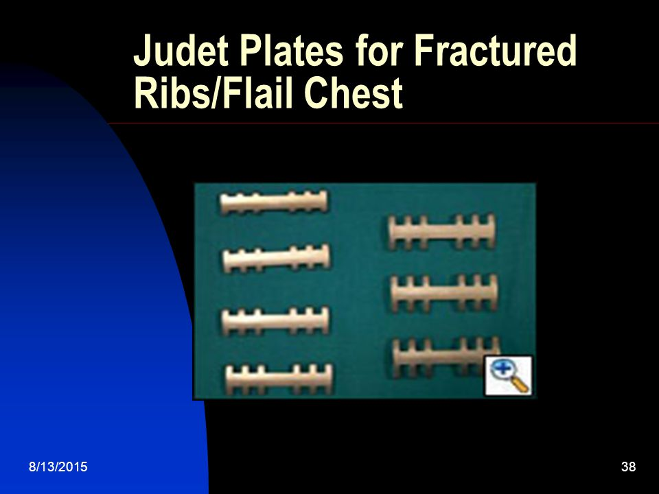 Judet Plates for Fractured Ribs/Flail Chest