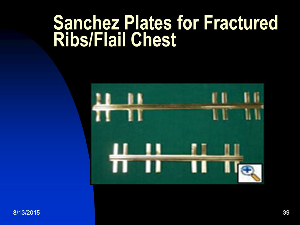 Sanchez Plates for Fractured Ribs/Flail Chest
