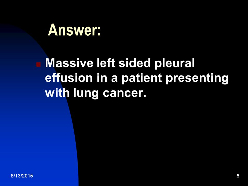 Answer: Massive left sided pleural effusion in a patient presenting with lung cancer. 4/19/2017