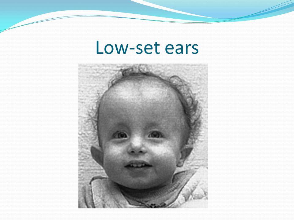 Trisomy 18 Edwards Syndrome Ppt Video Online Download