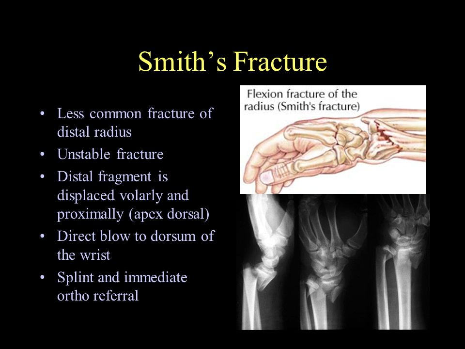 Management of Extremity Fractures - ppt video online download