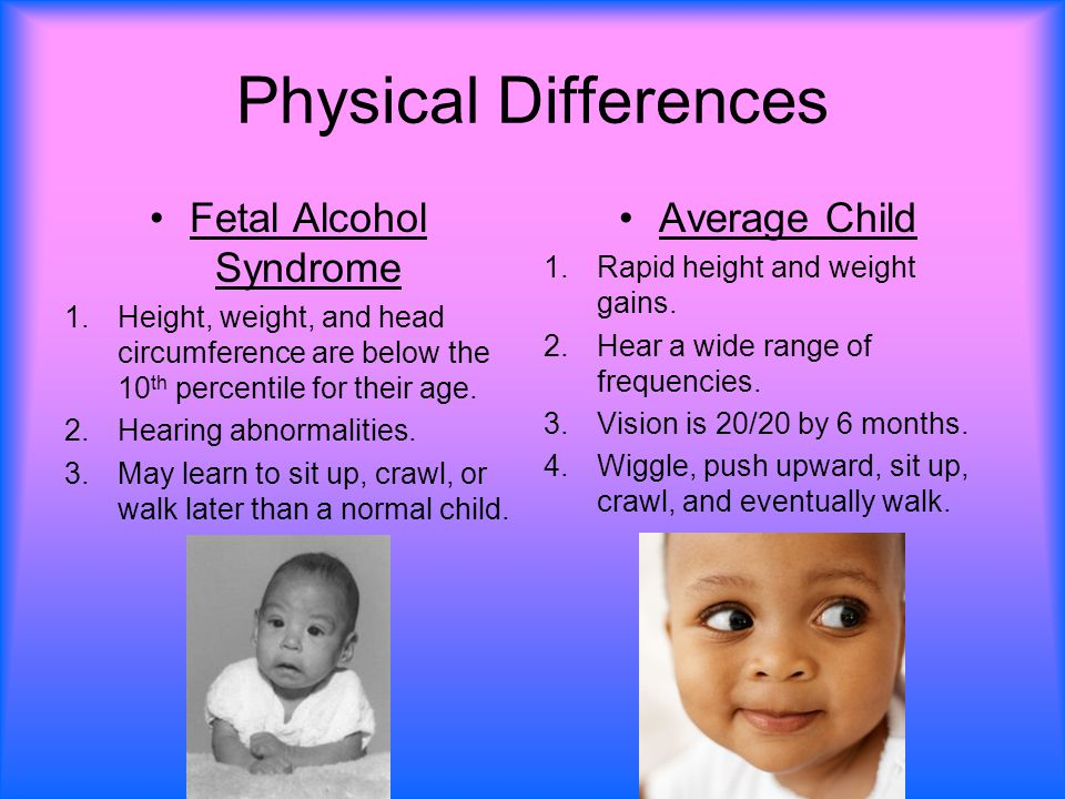 fetal alcohol synodrome Read chapter 4 diagnosis and clinical evaluation of fetal alcohol syndrome: it sounds simple: women who drink while pregnant may give birth to children.