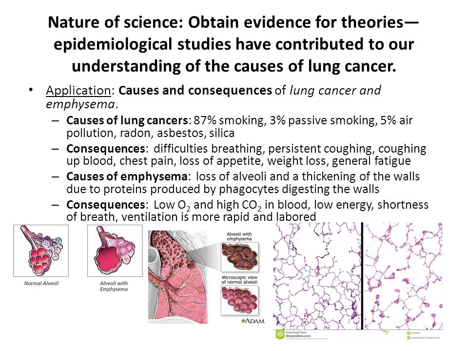 Nature of science: Obtain evidence for theories—epidemiological studies have contributed to our understanding of the causes of lung cancer.