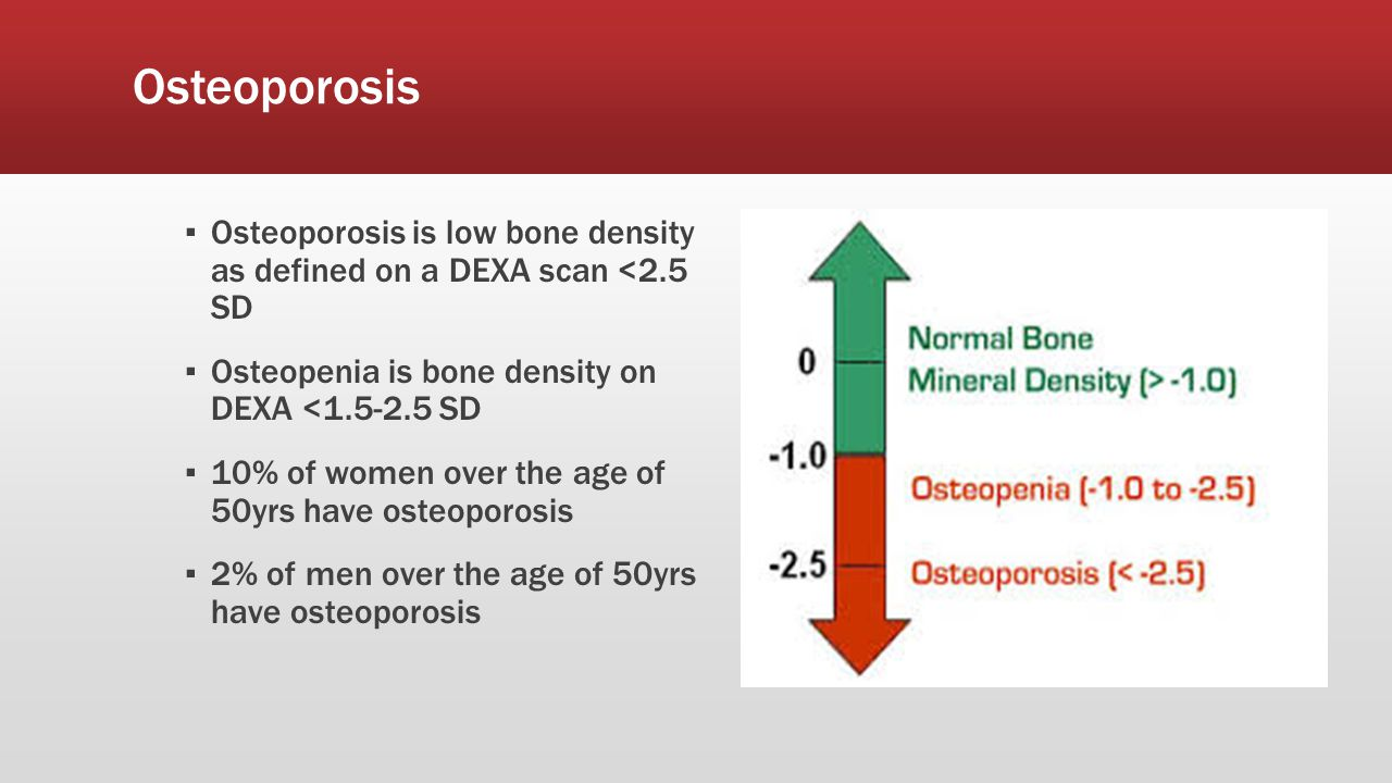 Osteoporosis Osteoporosis is low bone density as defined on a DEXA scan <2.5 SD. Osteopenia is bone density on DEXA < SD.