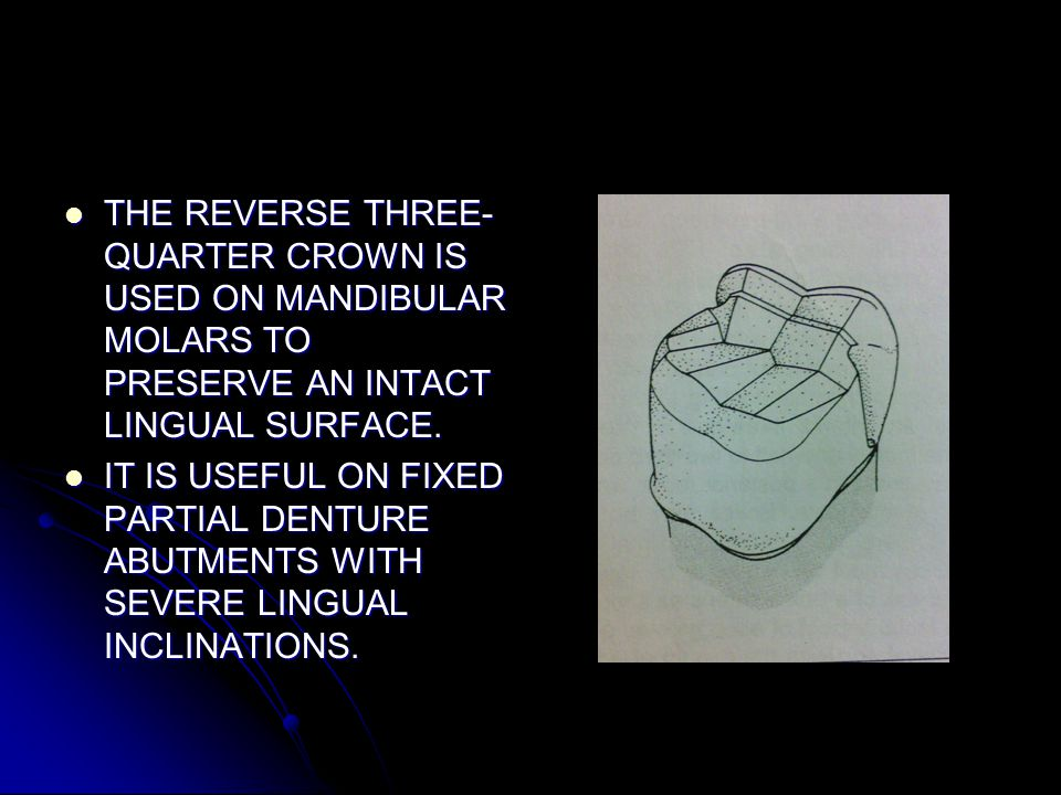THE REVERSE THREE-QUARTER CROWN IS USED ON MANDIBULAR MOLARS TO PRESERVE AN INTACT LINGUAL SURFACE.