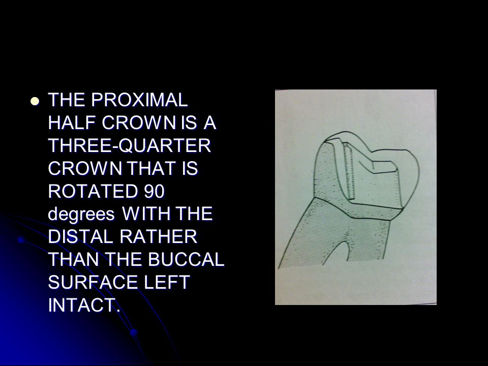 THE PROXIMAL HALF CROWN IS A THREE-QUARTER CROWN THAT IS ROTATED 90 degrees WITH THE DISTAL RATHER THAN THE BUCCAL SURFACE LEFT INTACT.