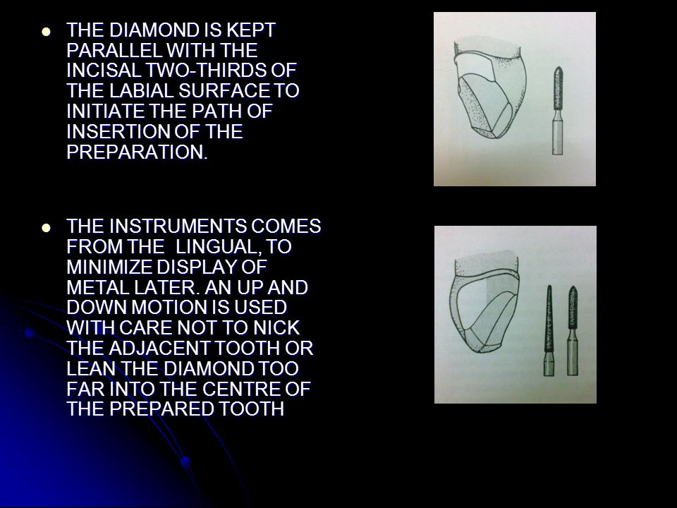 THE DIAMOND IS KEPT PARALLEL WITH THE INCISAL TWO-THIRDS OF THE LABIAL SURFACE TO INITIATE THE PATH OF INSERTION OF THE PREPARATION.