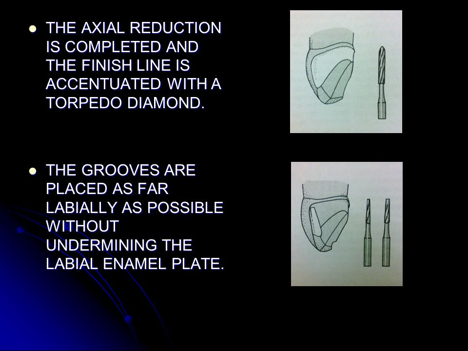 THE AXIAL REDUCTION IS COMPLETED AND THE FINISH LINE IS ACCENTUATED WITH A TORPEDO DIAMOND.