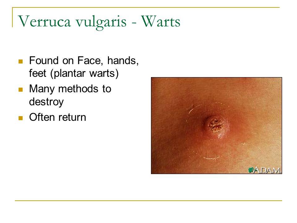 Verruca vulgaris face