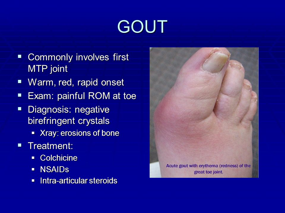 low protein diet for uric acid patients how do you cure gout naturally suggested diet for gout patients