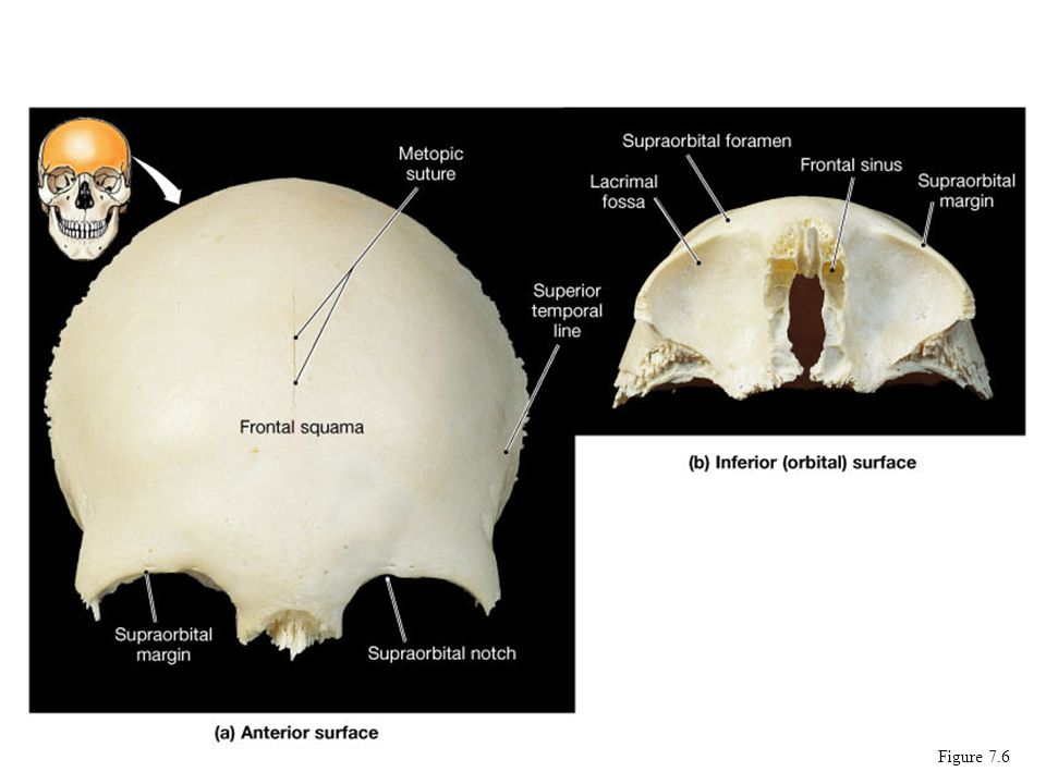 focus: the individual bones of the skull cranial bones - ppt download, Human Body