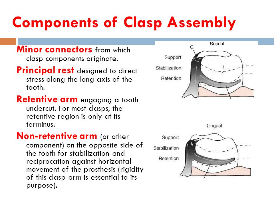 The Opposite Of Assembly : Direct retainers rola m shadid bds msc ppt video