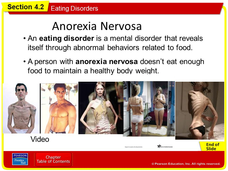 an introduction to the condition anorexia nervosa In this article, the authors provide an introduction to eating disorders including anorexia nervosa, bulimia nervosa, and eating disorders not otherwise specified, focusing on the clinical .