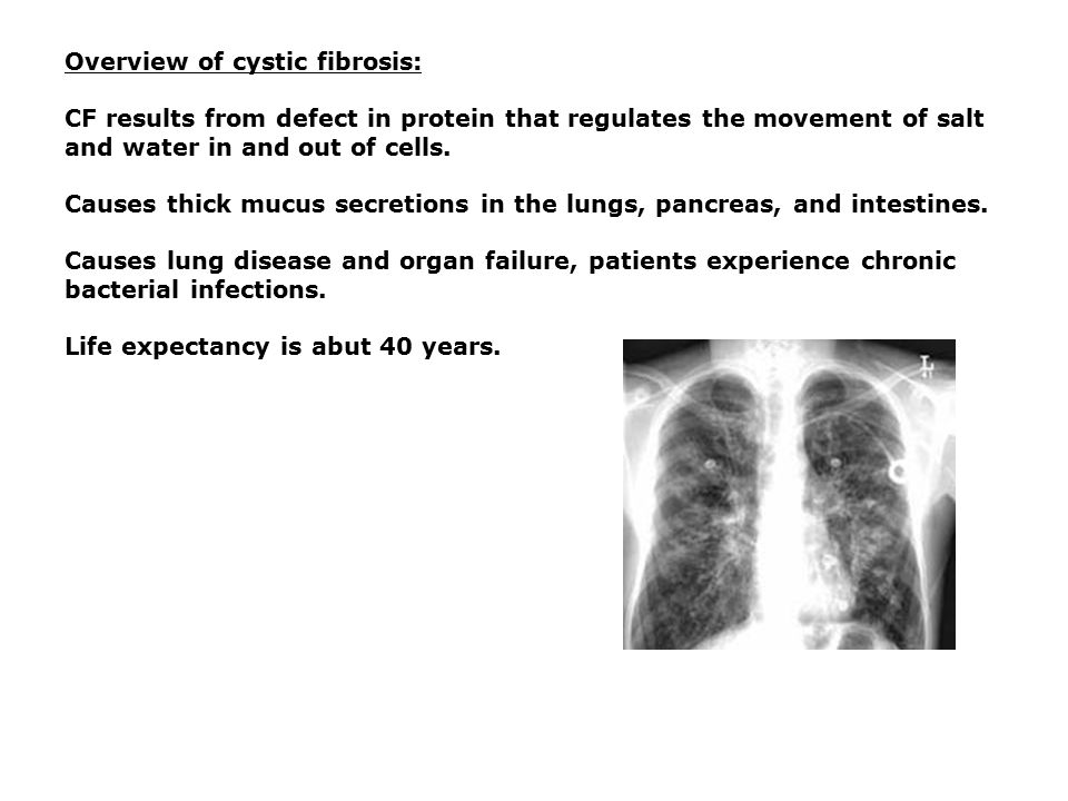 an overview of cystic fibrosis Prognosis of cystic fibrosis including probable outcomes, duration, recurrence, complications, deaths, and survival rates.