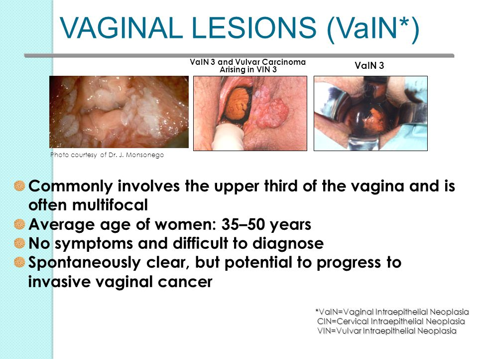 VaIN 3 and Vulvar Carcinoma Arising in VIN 3