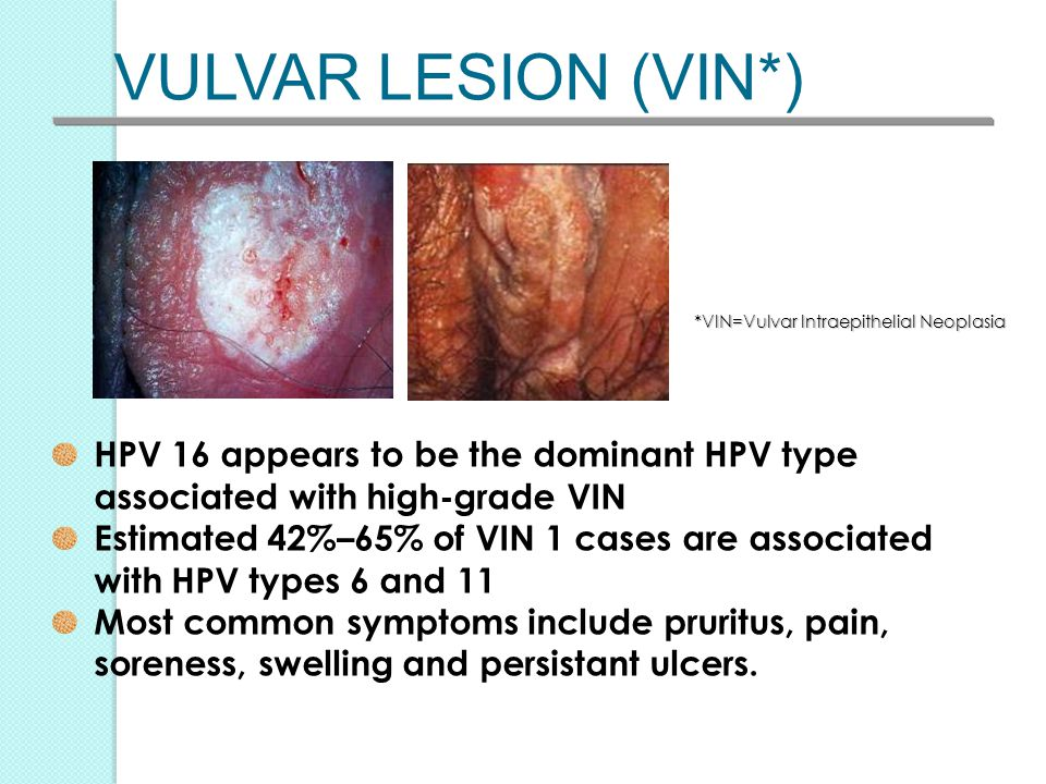 HPV Vaccine – Does it Prevent Cervical Cancer? - ppt video ...