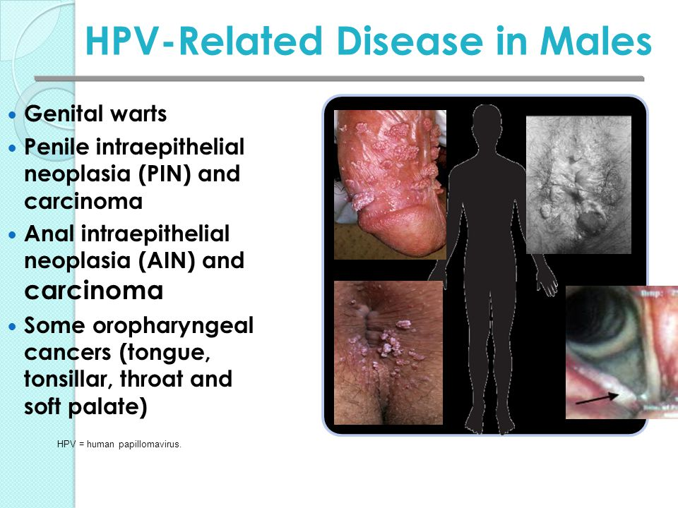 HPV-Related Disease in Males