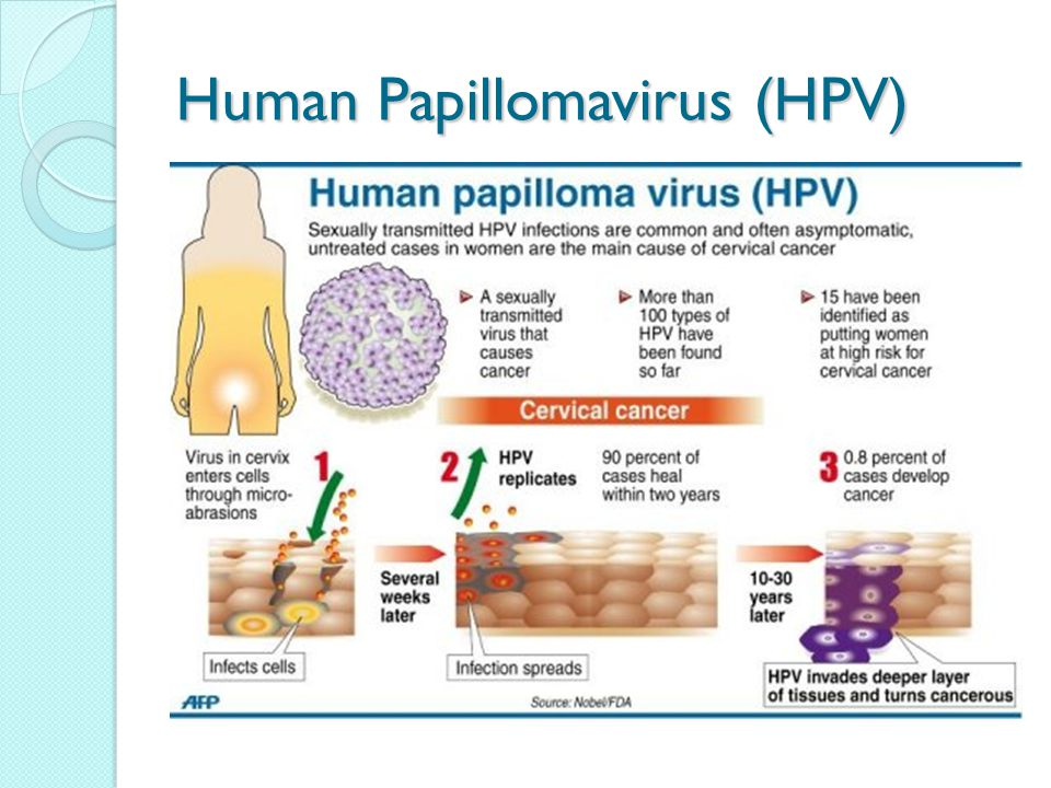 cervical cancer hpv and hpv vaccine In europe cost the three doses of the vaccine against the hpv 400 euros: spain have 2 death by cervical carcinoma by 100000 women ( international cancer netrwork screening 2012) and 02 death by anal cancer have vaccinate 100000 women and.