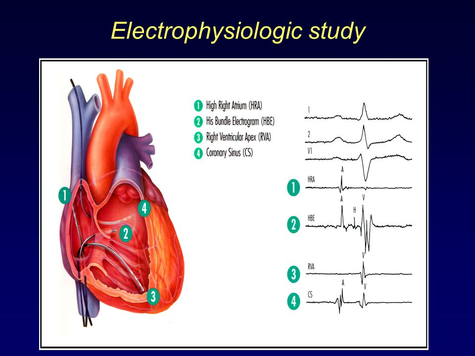 Electrophysiologic Study (EPS) - video dailymotion