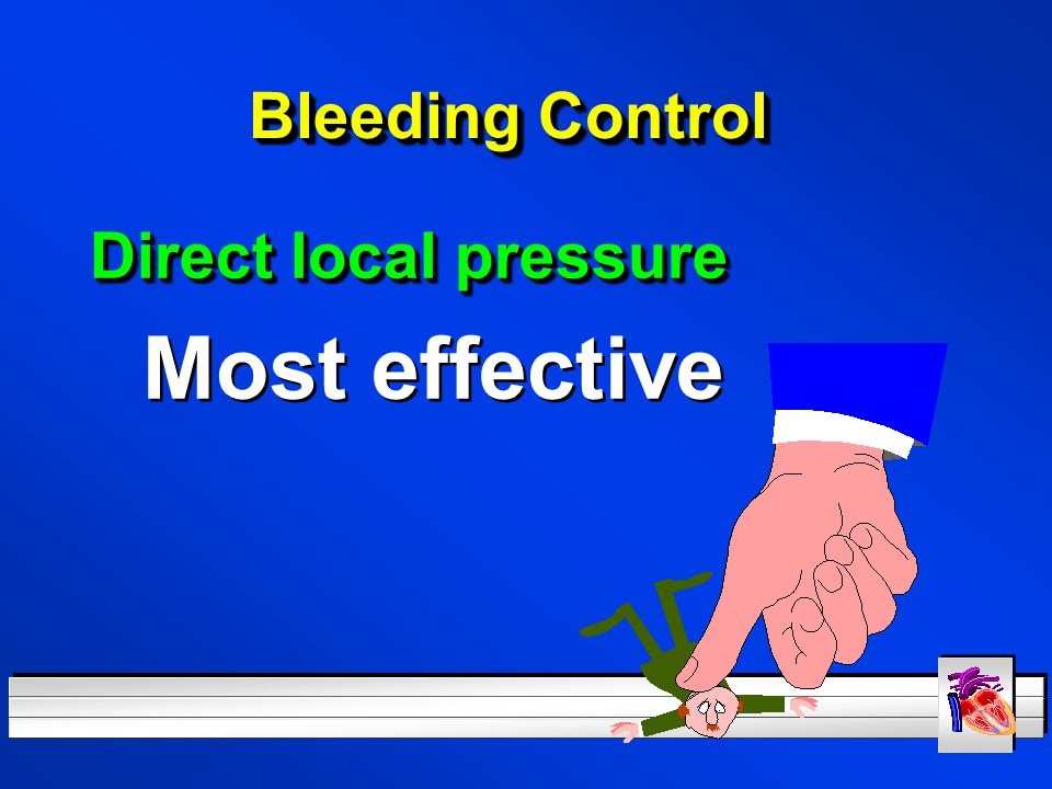 Bleeding Control Direct local pressure Most effective