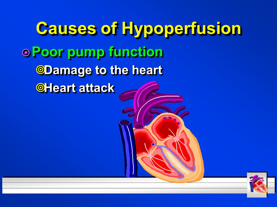 Causes of Hypoperfusion