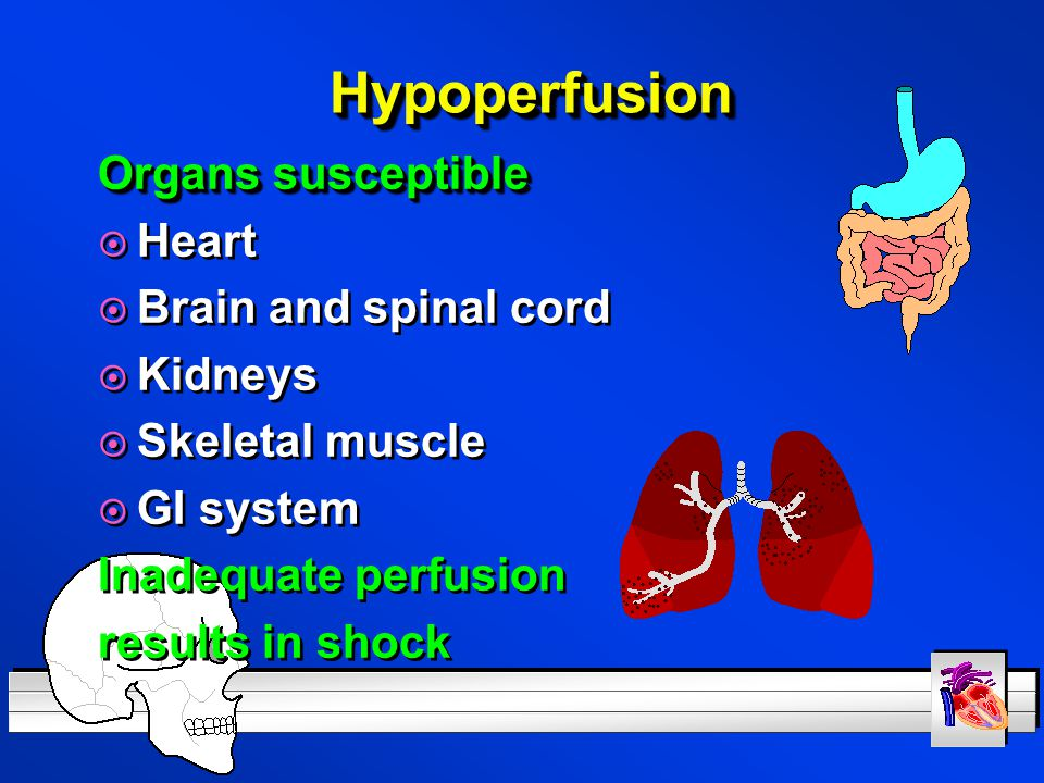 Hypoperfusion Organs susceptible Heart Brain and spinal cord Kidneys