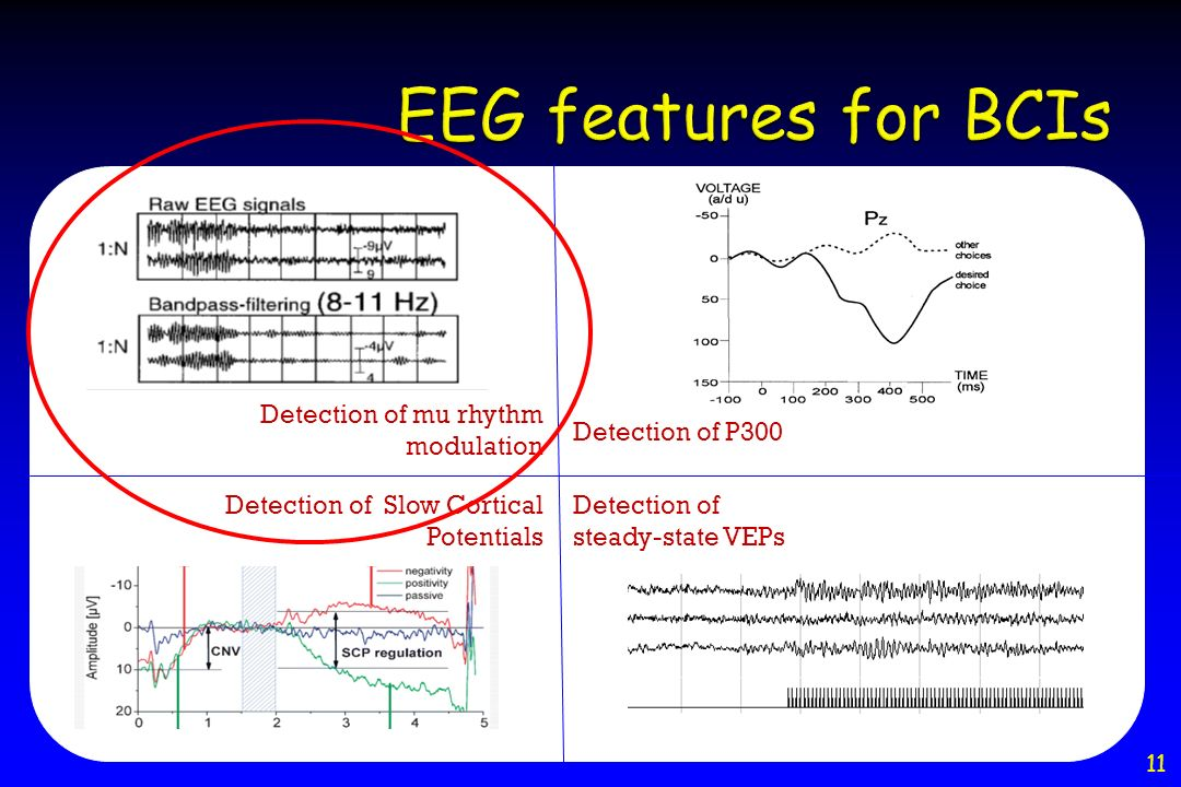 EEG features for BCIs Detection of mu rhythm modulation