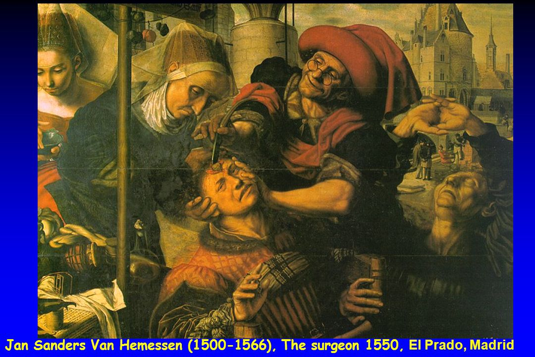 The scene painted by Jan Sanders van Hemessen shows a stone cutter at a fair. The surgeon, who is clearly happy that his operations have been successful, painstakingly moves his knife towards the stone, which is already visible. Behind him hang stones which have been successfully cut out of the head of other patients as a sign of his skill. Next to the quack stands a man who is wringing his hands in desperation - he is clearly going to be the next patient under the scalpel