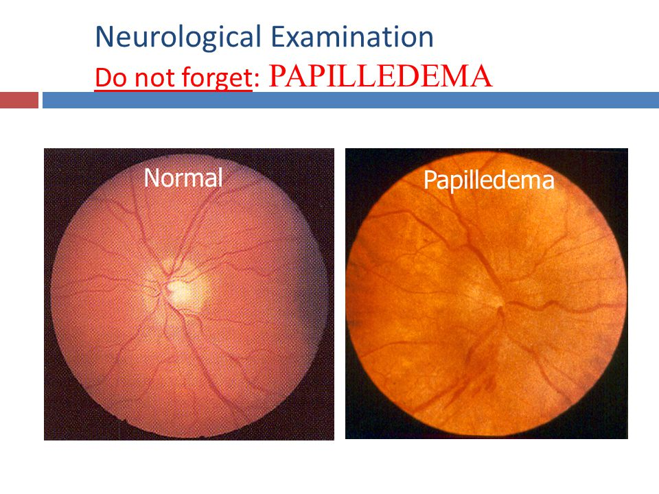 Neurological Examination Do not forget: PAPILLEDEMA