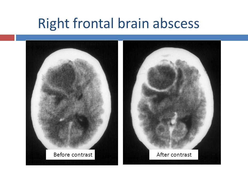 Right frontal brain abscess
