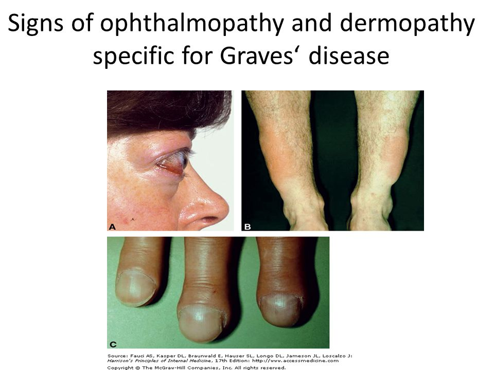 symptoms and causes of graves disease Grave's disease is one of the most common  grave's disease typically causes a goitre around  grave's disease and its symptoms can be treated and managed.
