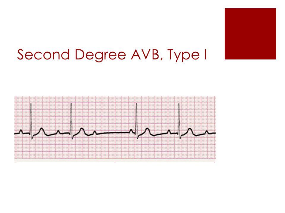 cardiac dysrhythmias nuro 438 february ppt video online download
