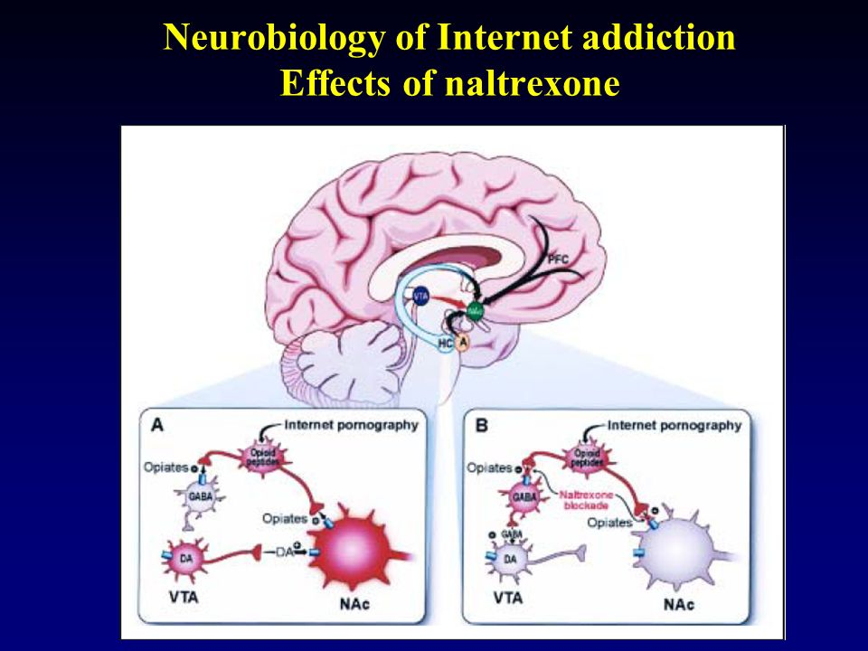 Neurobiology of Internet addiction Effects of naltrexone