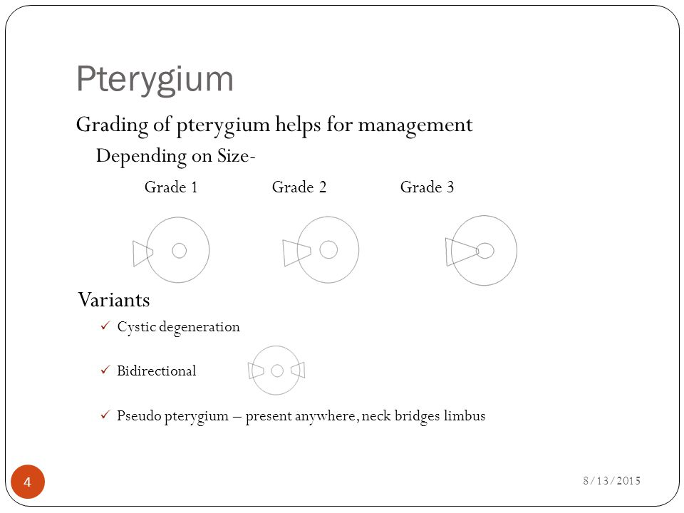 Management Of Pterygium Ppt Video Online Download